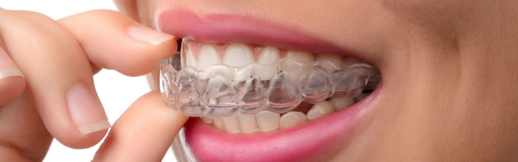 Invisalign Aligners by Redhead Orthodontics